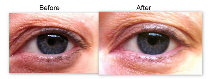 Top 10 Best Eye Creams For Bright Eyes Favful